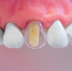 coronas-plasticas-tranparentes-uso-detalle
